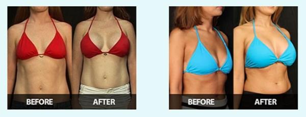 Mammorex - Breast Enlargement Pills For Women  Best -7006